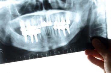 歯医者でレントゲン撮影って必要なの?レントゲンで分かること