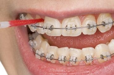 普段より念入りに!「矯正中」の正しい歯磨きのやり方