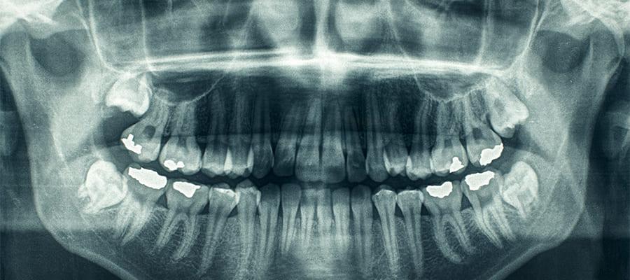 歯科でのレントゲン撮影って安全なの?