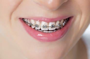 どんな方法がある?歯列矯正の種類と特徴